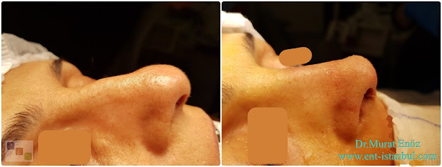 Nose Tip Plasty, Dorsal Hump Reduction, Hump Removal, Nose Tip Lifting