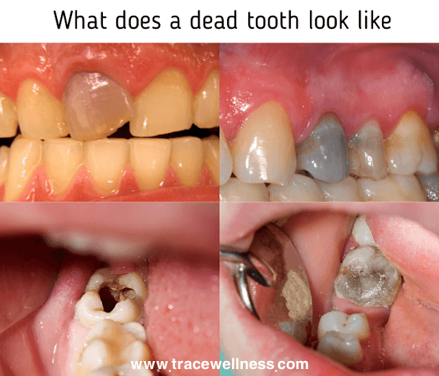 What does a dead tooth look like