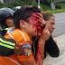 Joven pierde los ojos tras impacto de perdigones durante protesta en Venezuela.