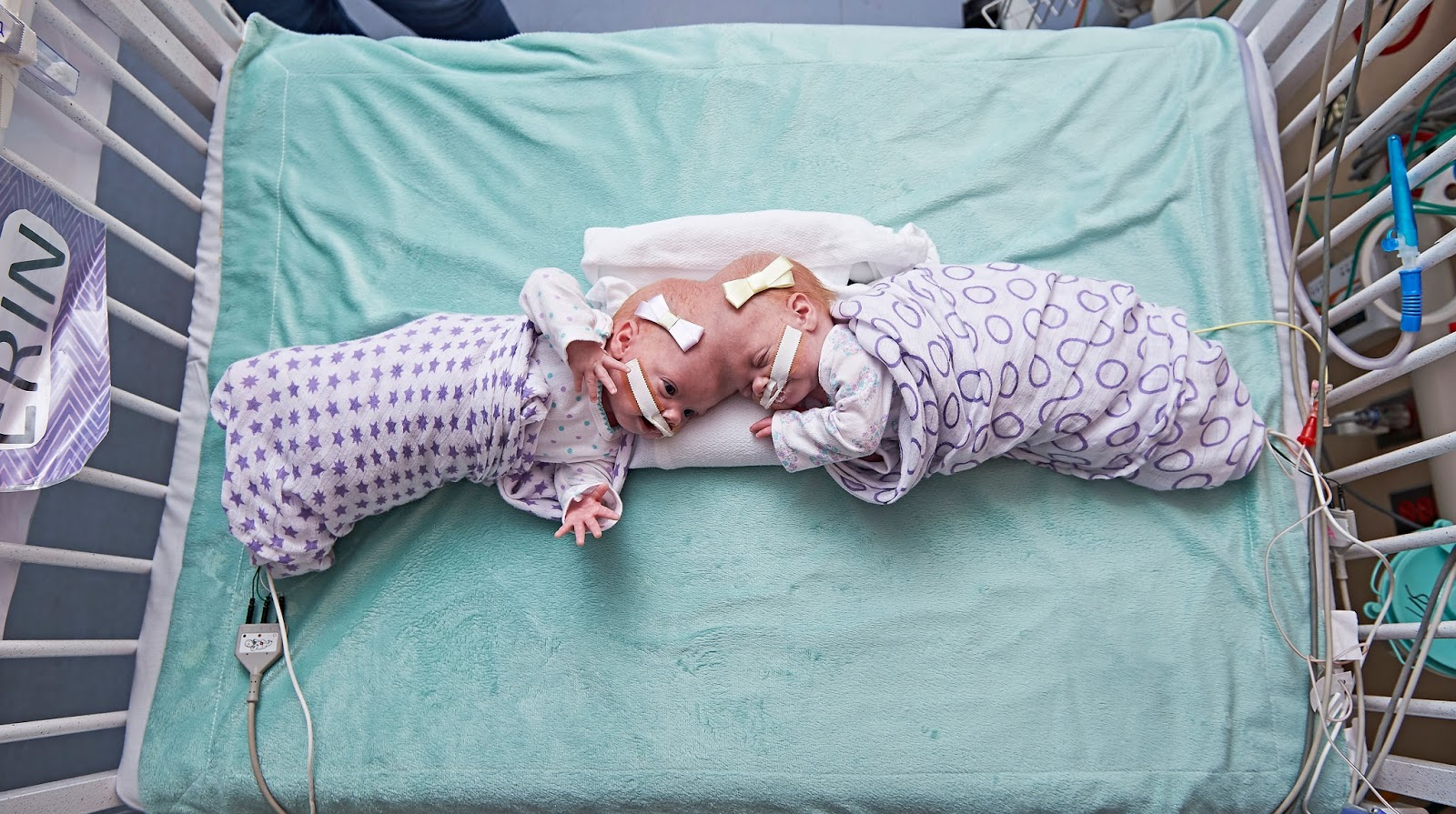 Formerly conjoined twins thriving after separation surgery