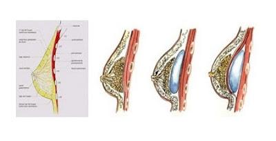 Nâng ngực nội soi an toàn uy tín nhất hoa kỳ giúp ngực to gọn tự nhiên4