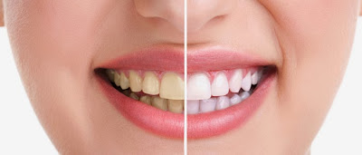 Teeth whitening - Creating Brighter Smiles