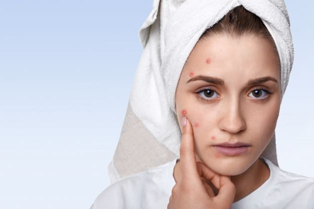 Treatment of acne in carrots