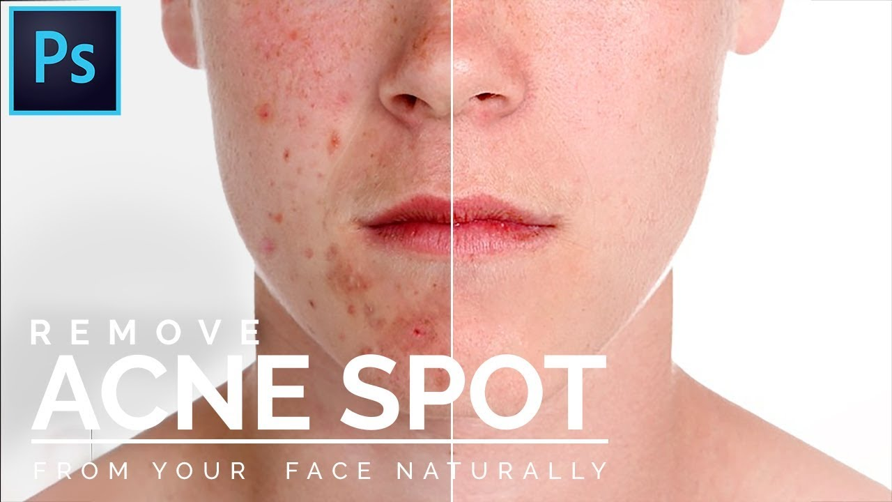 how to remove acne spot in photohsop. photohsop tutorial. acne spot removal tutorial.
