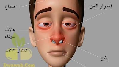أعراض إلتهابات وحساسية الأنف