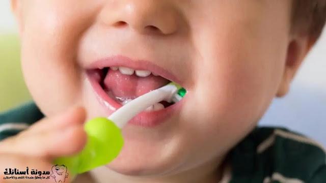 تسوس أسنان الأطفال اللبنية بعمر ٣ سنوات.