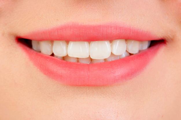معلومات ووصفات لتبيض الأسنان
