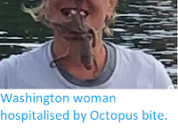 http://sciencythoughts.blogspot.com/2019/08/washington-woman-hospitalised-by.html