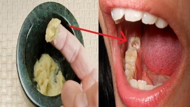 Wow Sungguh Ampuh!! Tidak Perlu Ke Dokter Gigi? Cara Ini Mampu Menyembuhkan Sakit Gigi Kronis Dalam Waktu 5 Detik Saja..!