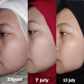 Serum mencerahkan, serum memperbaiki skin barrier, serum anti aging, serum retinol