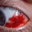 What Causes a Bright Red Eye?