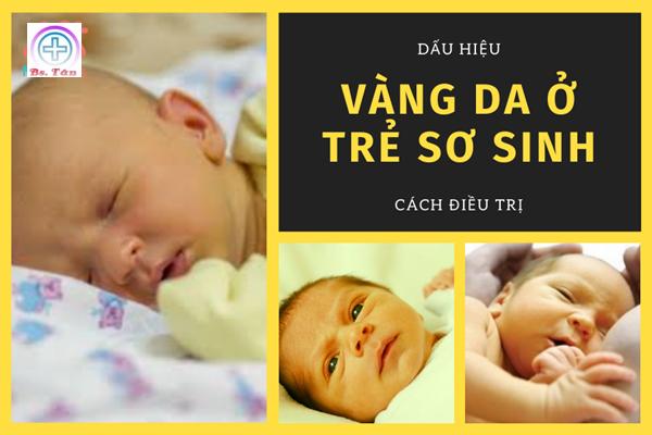 vàng da trẻ sơ sinh