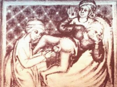 medicina medieval, medicina na idade media, tratamentos crueis da medicina na idade media, cirurgia idade media, cirurgia medieval, tortura, parto idade media