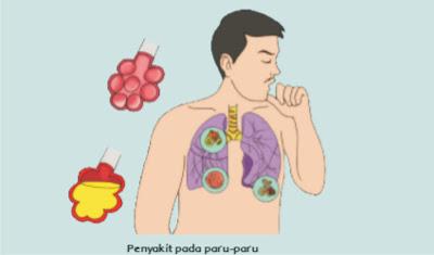 penyakit pada paru-paru