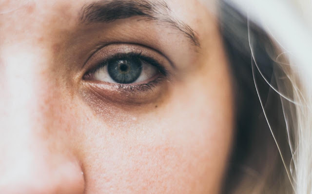 ojeras, formas de hacer desaparecer las ojeras, cómos se desaparecen las ojeras