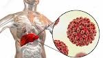 28 Juli Sebagai Hari Peringatan Hepatitis Sedunia