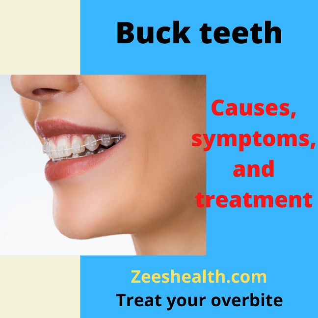 buck teeth