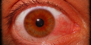 Are any new techniques being used in the treatment of eye cancer?