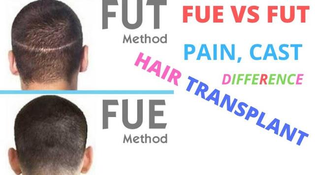 जानिये FUE और FUT Hair Transplant में बड़ा अंतर (Difference) हिंदी में
