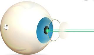 bladeless cataract