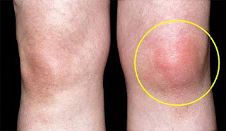 هل يمكن علاج موضى النقرس بالغذاء ؟ gout