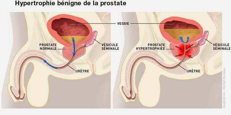 hbp hypertrophie prostate adénome infirmier