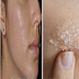 Home Remedies To Remove Dark Pimple Marks At Once