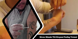 TCA Kimyasal Peeling