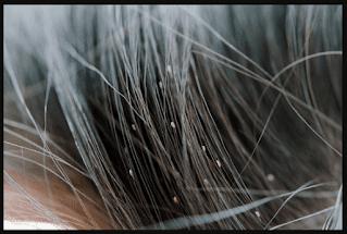 علاج القمل والصيبان بالطب النبوي لجابر القحطاني