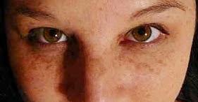 Atasi Flek Hitam yang Tebal di Wajah Menggunakan Florin Skin Care