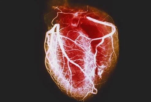 pengertian penyakit jantung
