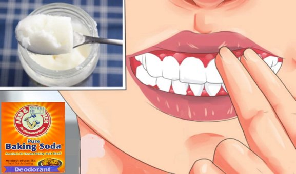 How To Cure Gingivitis With TURMERIC, COCONUT OIL, BAKING SODA or LEMONS (No Dentist Required)