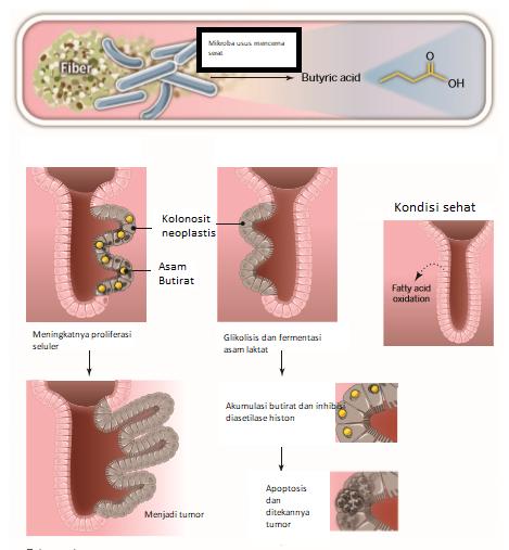 Hubungan antara mikroba, metabolisme dan kanker