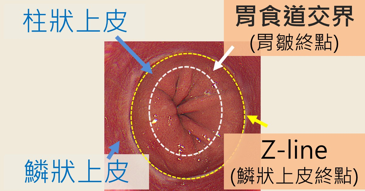 正常的胃食道交界圖,鱗狀與柱狀上皮外觀有明顯差距;皺褶消失處與上皮交接處最多差一公分。