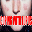 Coping With Lupus And Its Effects
