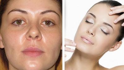 Peau grasse: remèdes maison pour l'éclat du visage