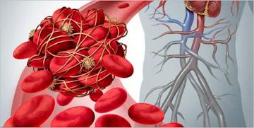 """Médico alerta que o pior """"ainda está por vir"""" devido aos danos causados pela coagulação do sangue associados às injeções de COVID-19"""