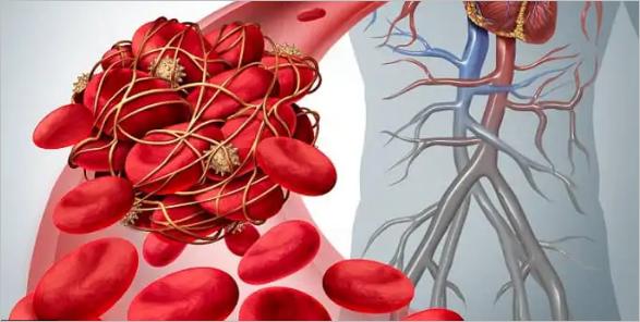 """Médico canadense alerta que o pior """"ainda está por vir"""" devido aos danos causados pela coagulação do sangue associados às injeções de COVID-19"""