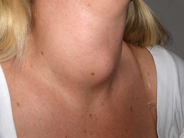 cuida-tu-tiroides-con-aceites-naturales-medicinas-suce