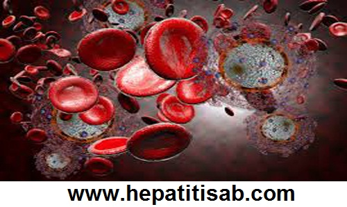 What is HIV Infection