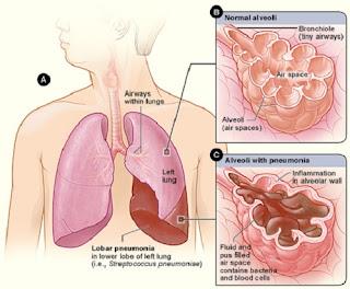 Viêm phổi là gì? Những điều bạn cần nắm rõ về căn bệnh nguy hiểm này