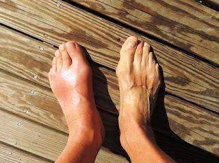 Gout (Asam Urat)