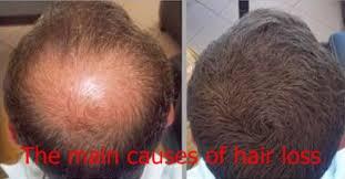 सिर के बाल झड़ने के मुख्य कारण