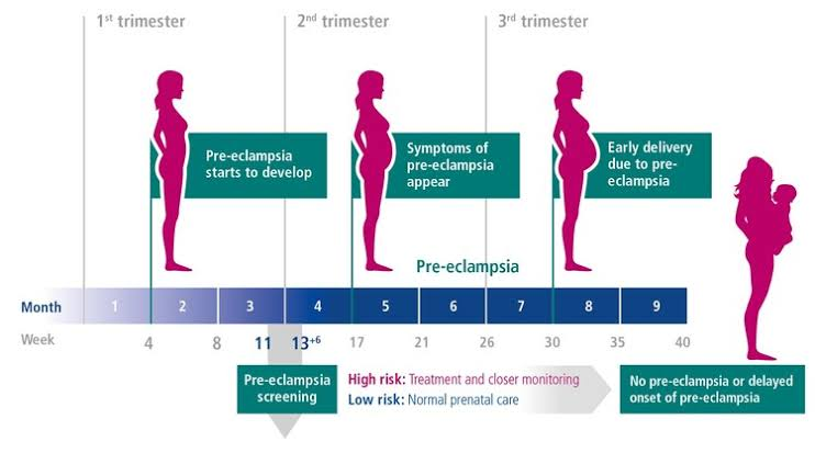 Eclampsia is the onset of seizures (convulsions) in a woman with pre-eclampsia