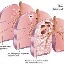 Obat Tbc Dewasa