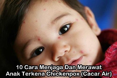 cara menjaga dan merawat anak chickenpox, petua anak kena chicken pox, penjagaan anak kena chicken pox, demam campak vs chicken pox, cacar air pada orang dewasa, cara menghilangkan bekas cacar air di wajah, penyebab cacar air, cacar air pada anak