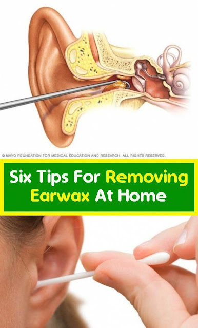 Causes And Tips For Removing Earwax At Home Instantly!