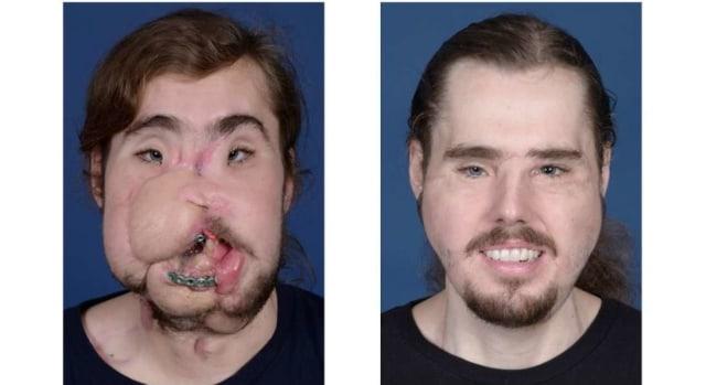 Muka Pria Ini Berubah Drastis Setelah Transplantasi Wajah