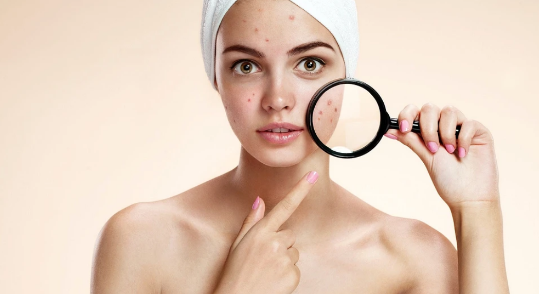 How to remove acne at home on the advice of a dermatologist