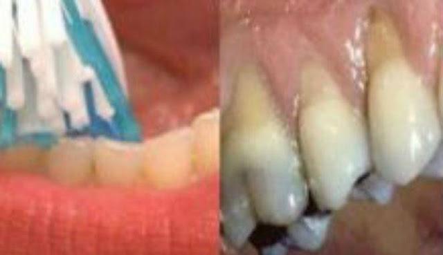 Jangan Pernah Menyikat Gigi Terlalu Keras